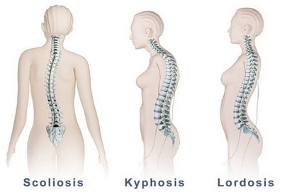 scoliosis and pregnancy 1 - SKOLYOZ